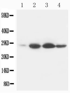 Picture of Bcl-2 Monoclonal Antibody
