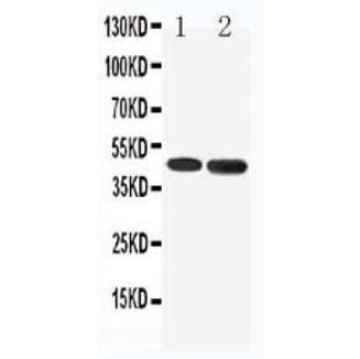 Picture of 5HT1A Receptor Antibody