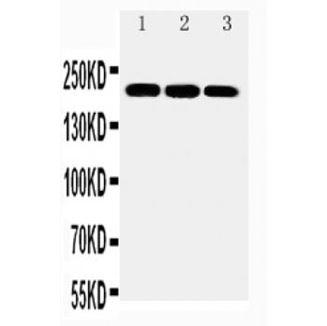 Picture of ABCA1 Antibody