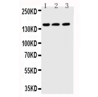 Picture of ABCB11 Antibody
