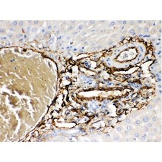 Picture of ABCB4 Antibody