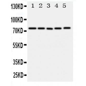 Picture of ABCG1 Antibody