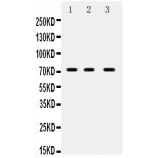 Picture of ABCG5 Antibody