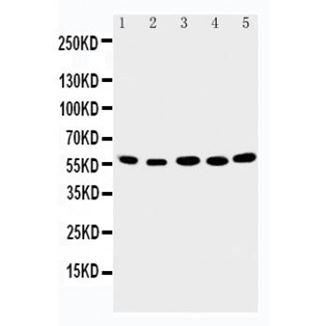 Picture of ABI2 Antibody
