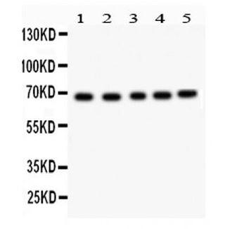 Picture of ACHE Antibody
