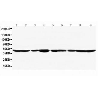 Picture of Actin Antibody