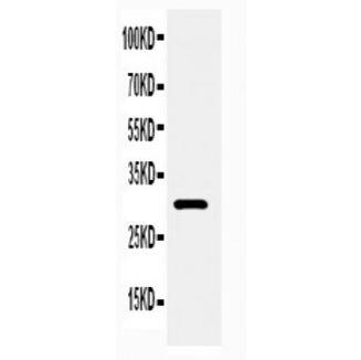 Picture of Adiponectin Antibody