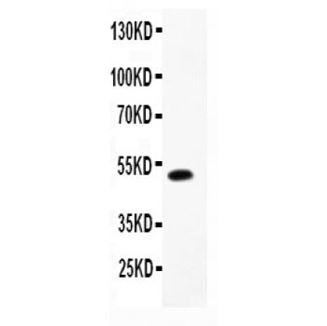 Picture of ADRA1A Antibody