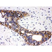 Picture of AGTR1 Antibody