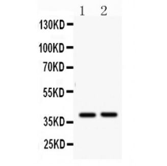 Picture of AHSG Antibody