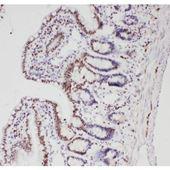 Picture of ALK Antibody