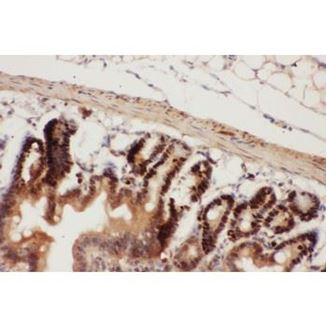 Picture of Beclin 1 Antibody