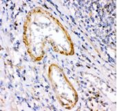 Picture of Anti Calretinin Antibody (polyclonal)