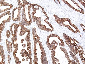 Picture of Cytokeratin 18 (Premier)