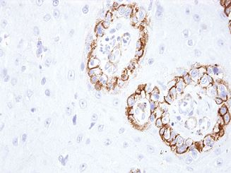 Picture of KBA.62 (Melanoma Associated Antigen) (Premier)