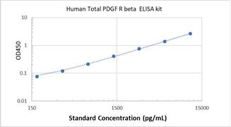 Picture of Human Total PDGF R beta ELISA Kit